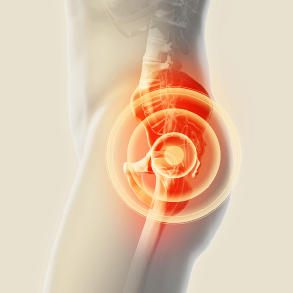 Total Knee Replacement Specialist Scottsdale Az Matthew Russo Md